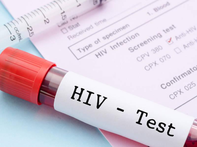 Bari: domani test gratuiti dell'HIV sulle spiagge di Pane e Pomodoro e Torre Quetta
